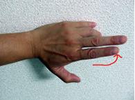 elbow3