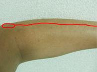 elbow4